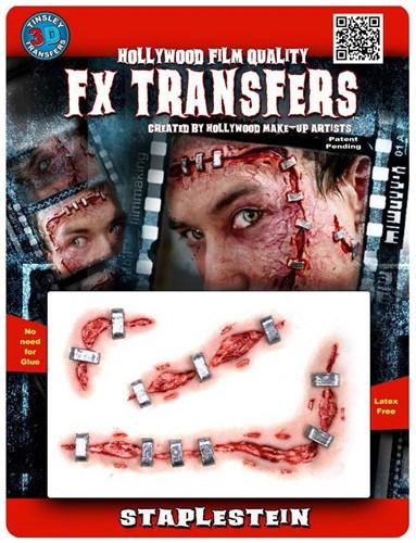 Professionele Wond FX - Staplestein (Nietjes)